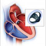 بیماری های دریچه ای قلب